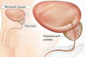 Терапия инфекционного простатита
