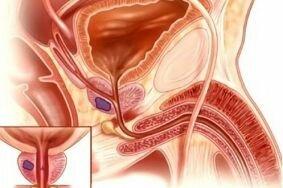 Особенности течения калькулезного простатита