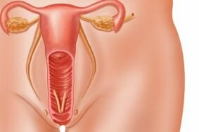 Необходимая информация о воспалении мочевого пузыря