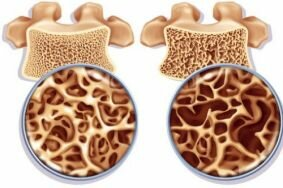 Как не допустить остеопороз в период менопаузы