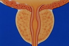 Трудности и особенности лечения абактериального простатита