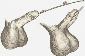 Процедура бужирования при уретрите