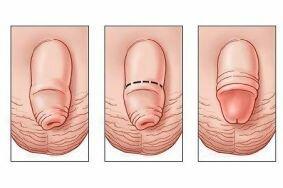 Влияет ли обрезание на потенцию