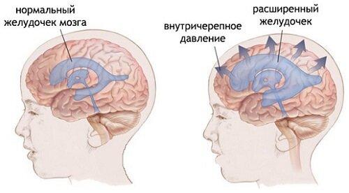 Доксициклина и передозировка