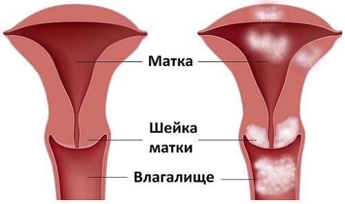 Секс фото белка из фильма физрук