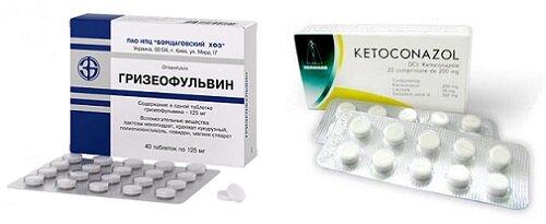Кетоконазол и Гризеофульвин