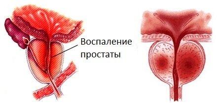 какой крем поможет от пигментных пятен