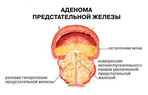 узи и аденома