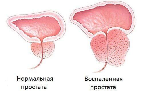 Простодин и воспаление