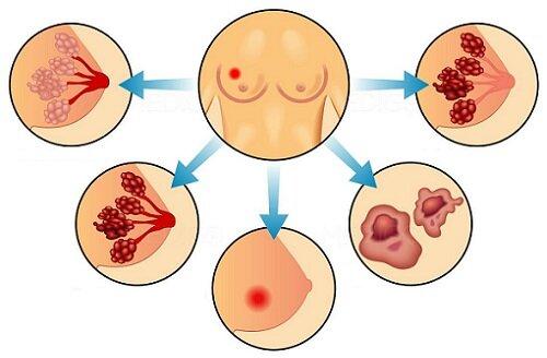 опухоли в молочной железе