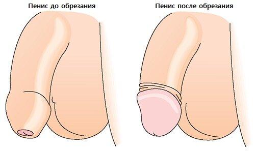 Обрезание