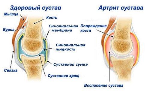 Питание при заболевании остеохондроза шейного отдела