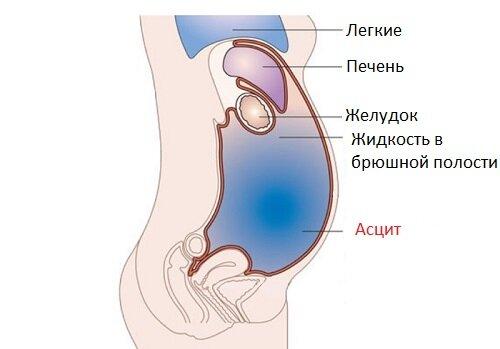 Сытин настрои лечение позвоночника