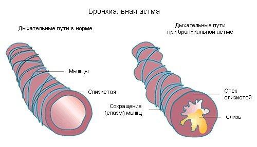 бронхиальная астма и бег