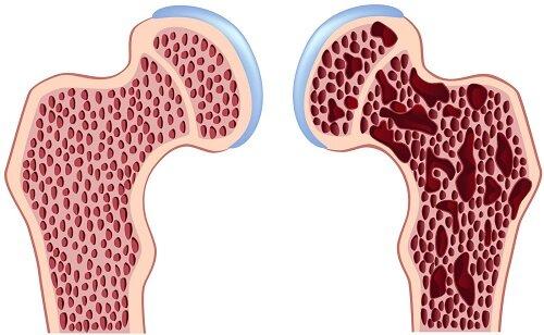 Остеопороз менопауза