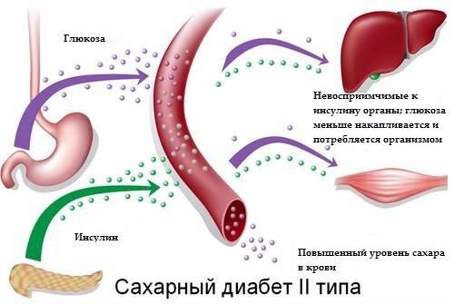 Лечение сахарного диабета с черным тмином